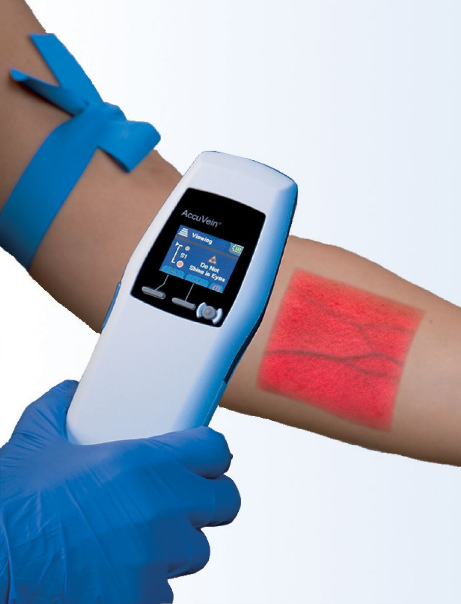 The Accuvein device depicting the visualisation of veins in the arm.